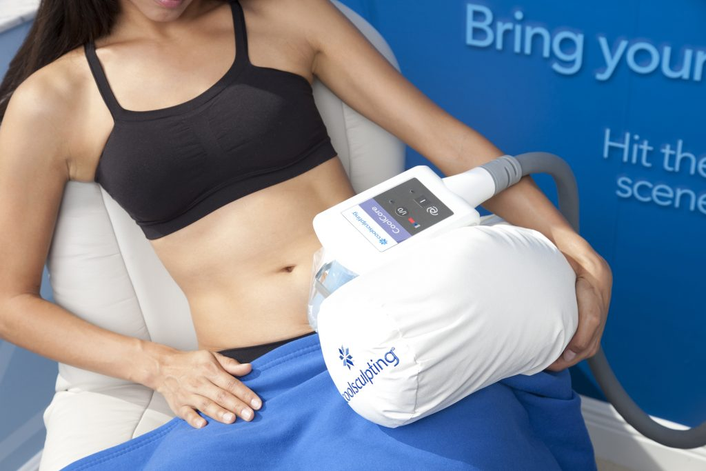CoolSculpting applicator in place during an abdomen treatment.