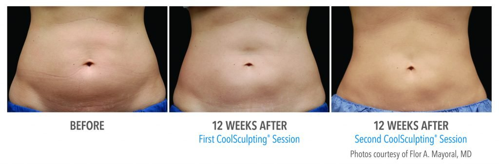 CoolSculpting progress from starting out to after two sessions