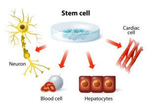 Stem Cell Therapy uses cells with the ability to adapt to surrounding cells